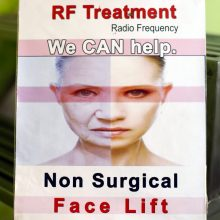 RF treatment in Noida