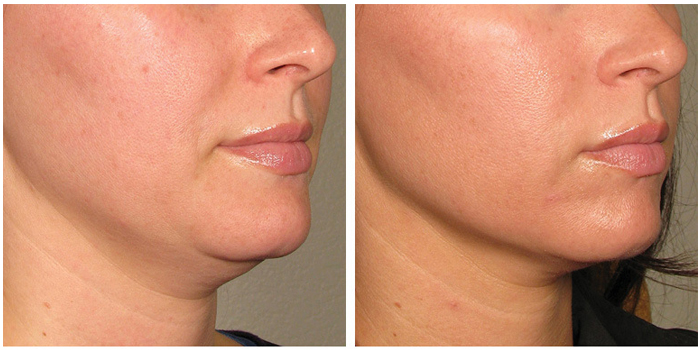 non-surgical-face-lifts